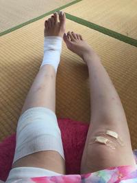 こんばんは!お久しぶりの出勤👍足怪我しちゃってました😵アルコール消毒って必要だよね🍻今日飲めたらい…の写真